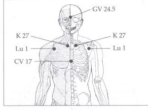 GV 24.5, K27, Lu1, CV17