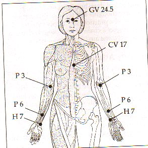 Arm Acupressure Points, resized and cropped