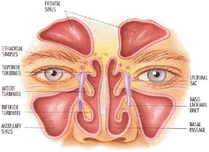 sinus-1, maxillary sinuses
